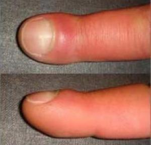 Turmeric cures staph!   The Thyroid Chronicles